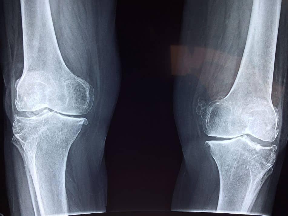 Zdjęcie rentgenowskie stawów nóg